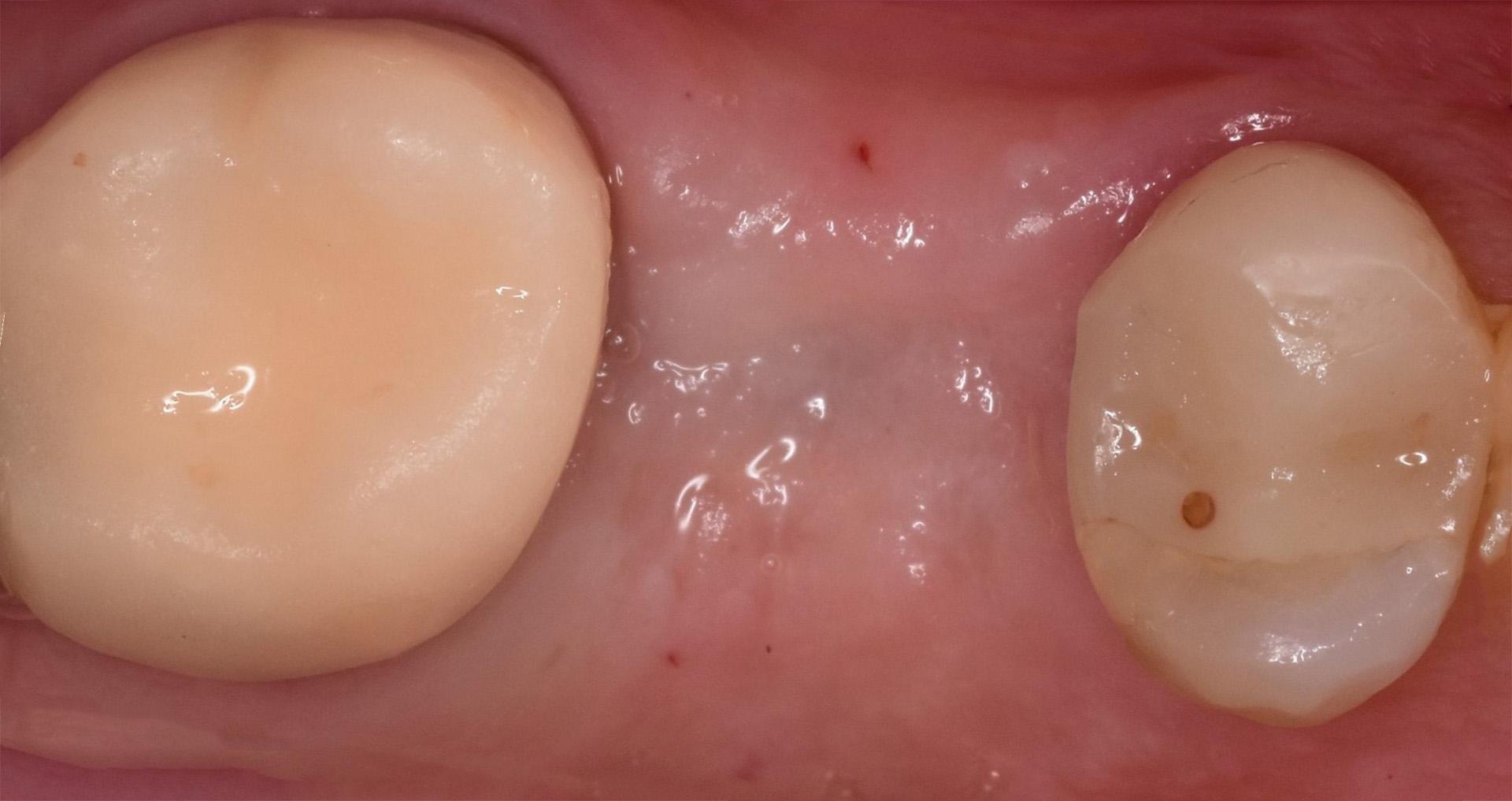 Before-Εμφυτεύματα Δοντιών
